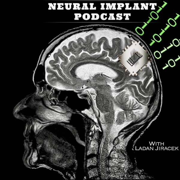 Neural Implant podcast - the people behind Brain-Machine Interface revolutions