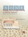 Bone Biology Harvesting Grafting For Dental Implants