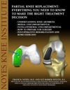 Partial Knee Replacement Everything You Need To Know To Make The Right Treatment Decision