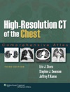 High-Resolution CT Of The Chest Third Edition