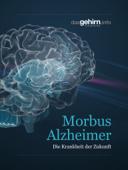 Morbus Alzheimer