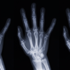 X-Ray Camera + Silent