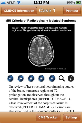 Multiple Sclerosis - MedImage Cases screenshot 1