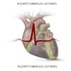 CardioScores