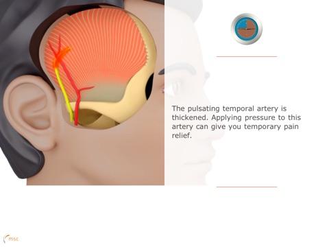 Migraine Compass Скриншоты8
