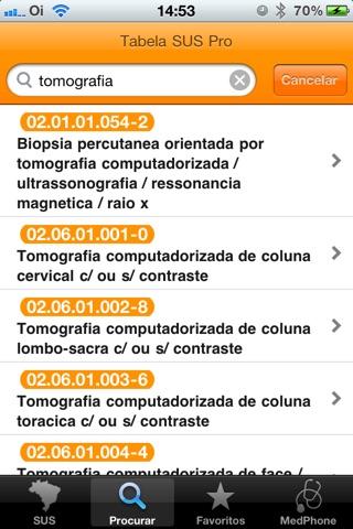 Tabela SUS Pro screenshot 3
