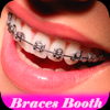Braces teeth Camera Editor - Braces teeth Maker