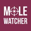 MoleWatcher