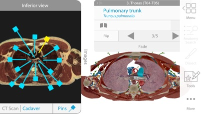Screenshot #10 for Human Anatomy Atlas 2018