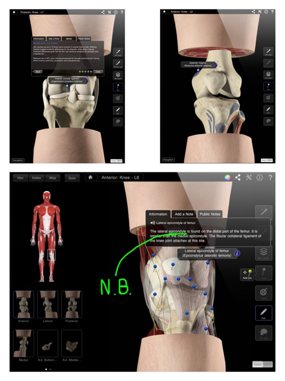 Knee Pro III - iPad Screenshots
