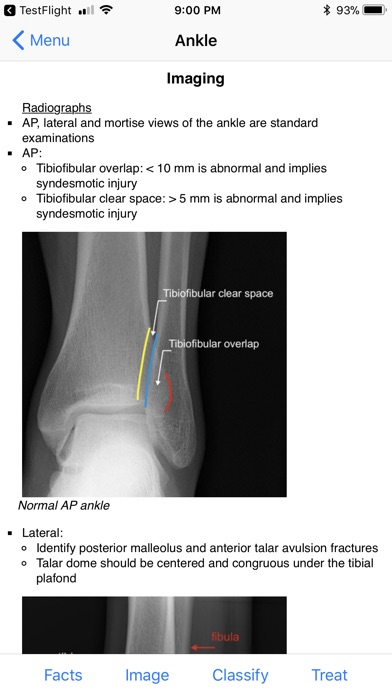 Ortho Traumapedia Screenshot 4