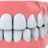 Dentist Surgery Game