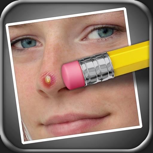 瑕疵清除器 (Pimple Eraser)